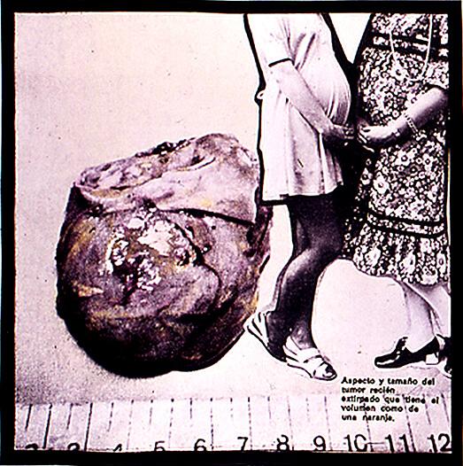 Tumor (Etnografía), 1972